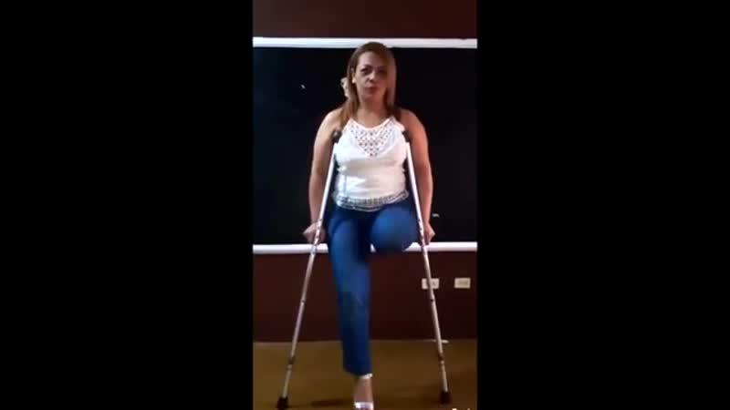 Amputee woman dancing