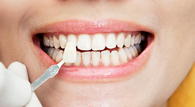 Как стоматологические виниры устанавливаются на зубаы