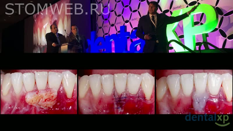 Gingival Recessions Around Teeth Implants