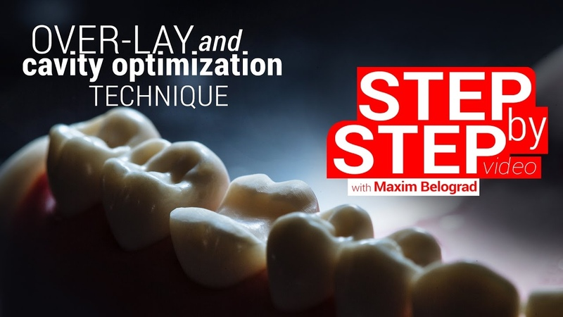Step by step Overlay preparation and cavity optimization protocol