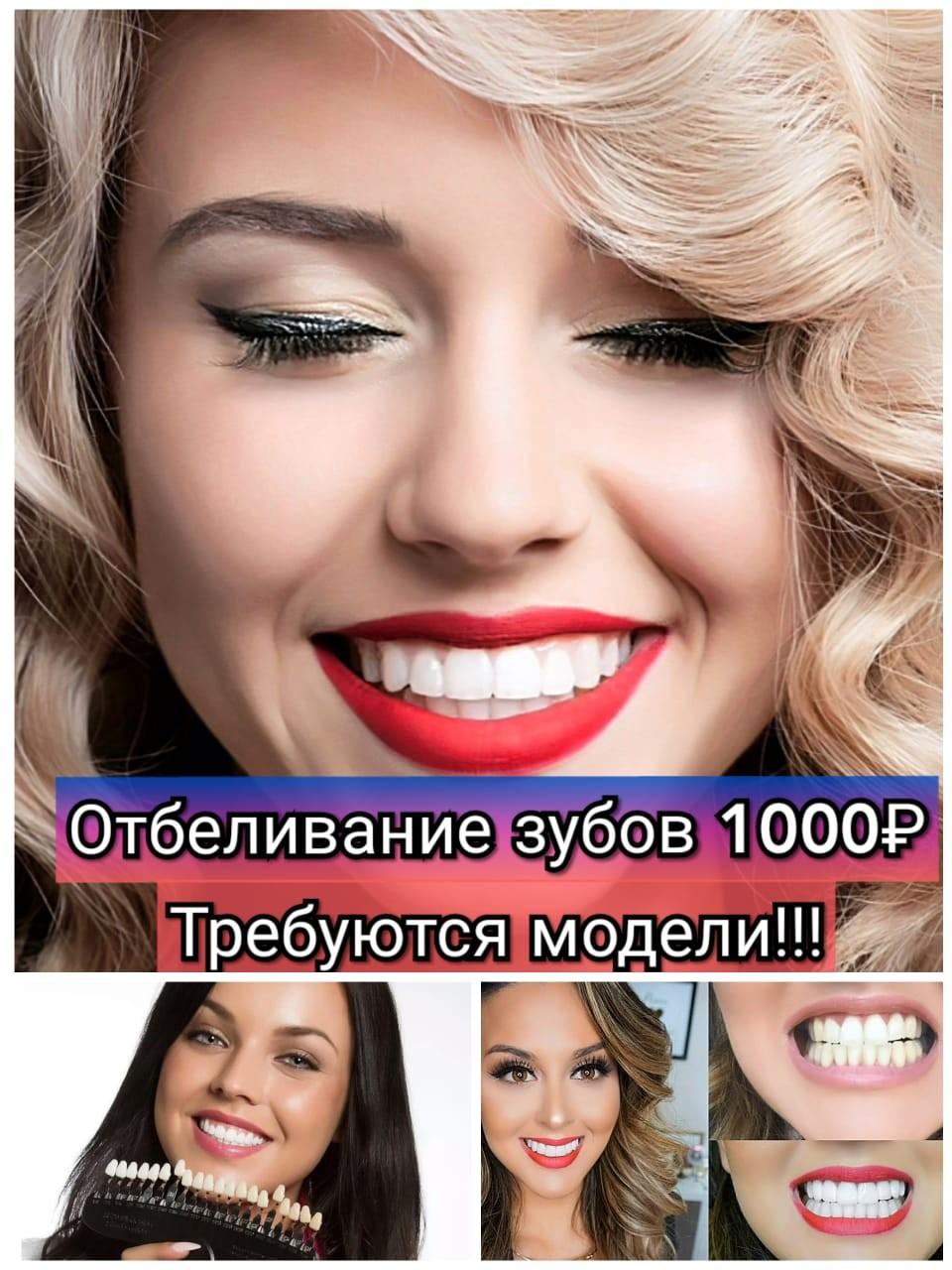 Набираем моделей на отбеливание зубов за расходники!