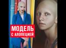 Элиза с алопецией стала моделью Недели моды в Москве – Москва FM