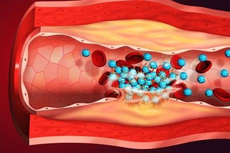 Опасный тромб: признаки и симптомы тромбоза